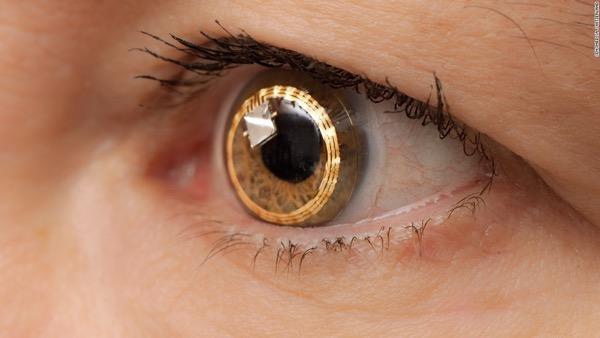 Smart Contact Lenses 3